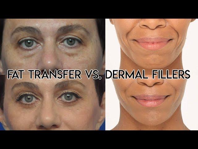 Fat Transfer vs Dermal Filler