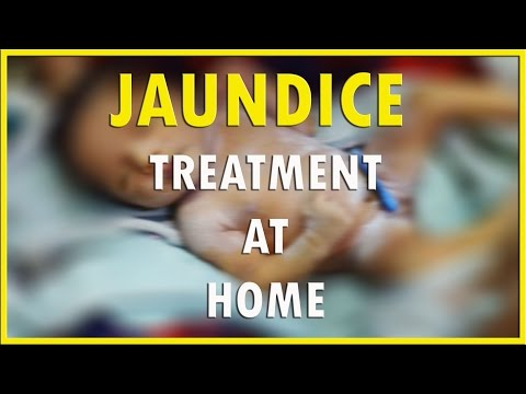 how to cure jaundice in newborn baby ?  HD 1080P