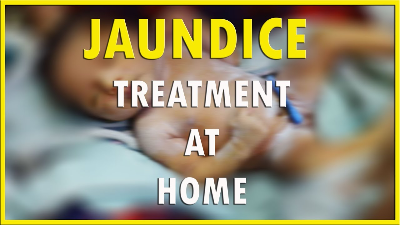 How To Cure Jaundice In Newborn Baby Hd 1080p Youtube