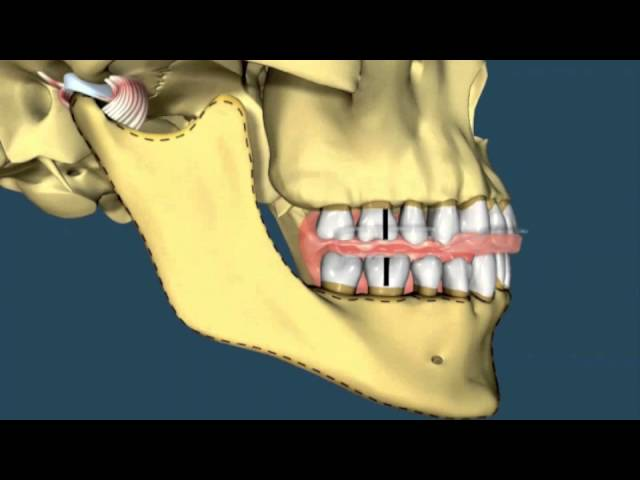 Avance mandibular - Ortodoncia