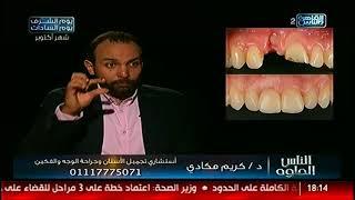 الناس الحلوة | عوامل نجاح زراعة الأسنان مع د.كريم مكادى