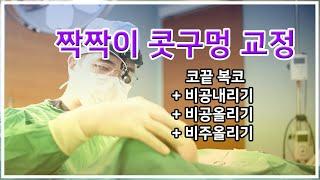 콧구멍 짝짝이 교정하면서 코끝 복코수술(feat. 비공…