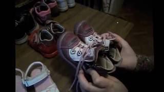 видео Косолапость у детей: как исправить в домашних условиях, упражнения, ортопедическая обувь