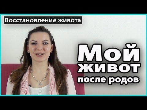 ⚠️ МОЙ ЖИВОТ ПОСЛЕ РОДОВ | Растяжки, диастаз, пупочная грыжа, лишняя кожа 💜 LilyBoiko