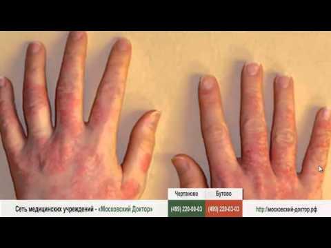 Аллергия на черешню и вишню: симптомы, лечение, фото