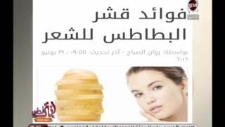 أنتي أحلى | اخبار السوشيال ميديا مع أمينة شلباية