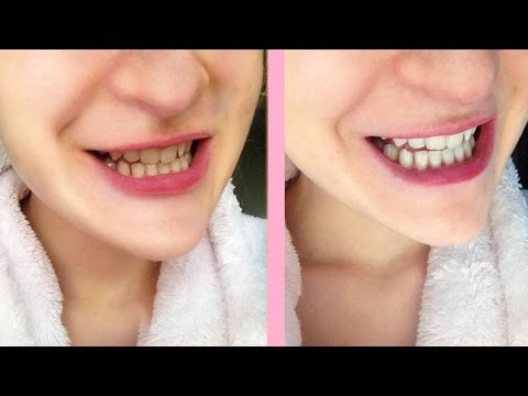 how to use crest white strips sensitive