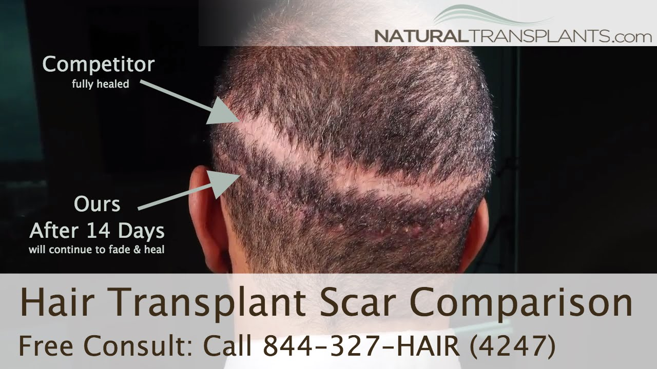 Hair Transplant Scar Natural Transplants Vs Competitors Bad Hair