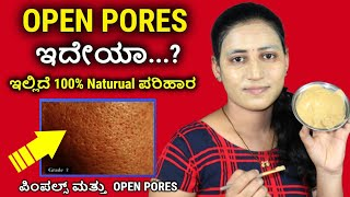 open pores ಗೆ ಮ್ಯಾಜಿಕಲ್ ಟೋನರ್ . home remedy for large & open pores