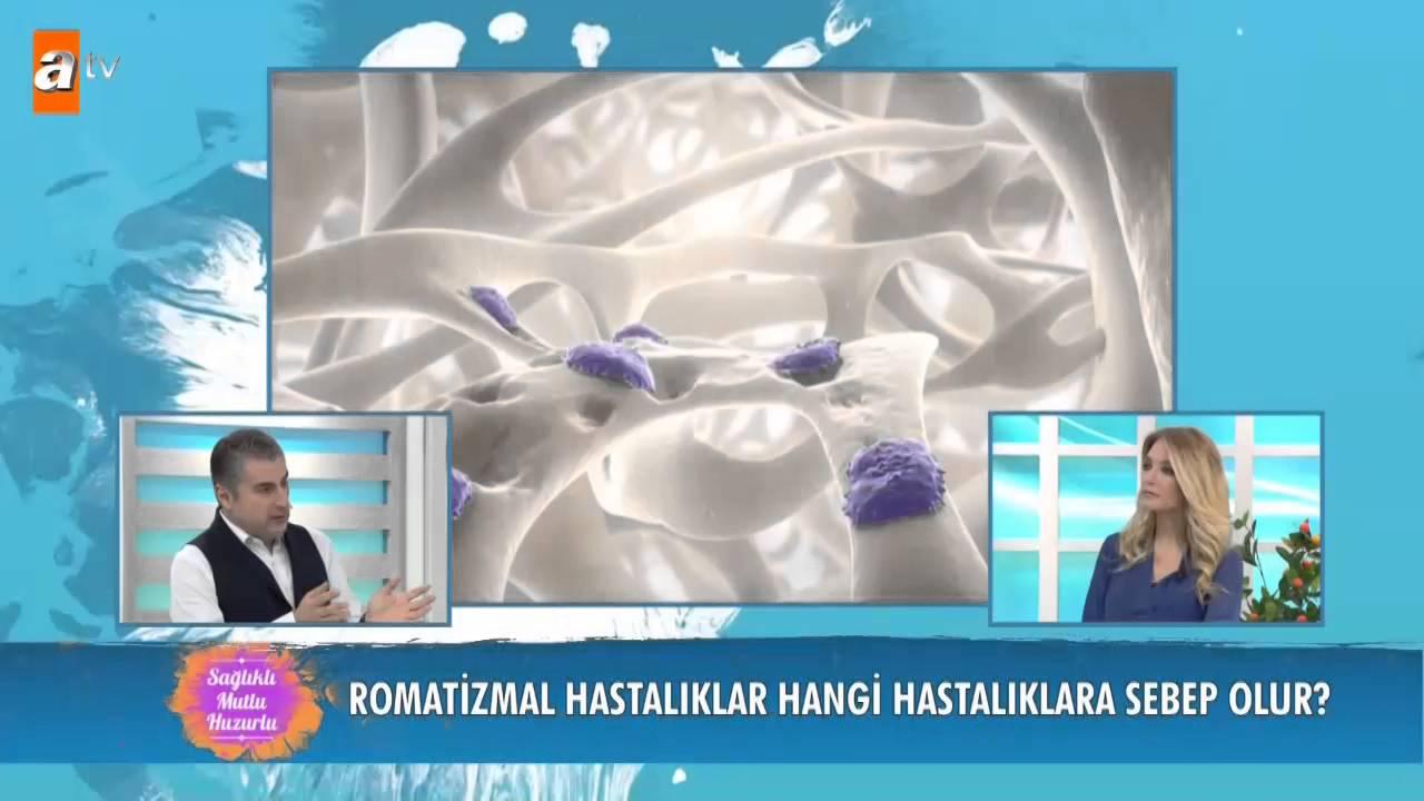 Iltihaplı eklem romatizması bitkisel tedavisi