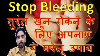 तुरंत खून रोकने के लिए | अपनाएं ये घरेलू उपाय | immediately stop bleeding | Stop Bleeding in Hindi