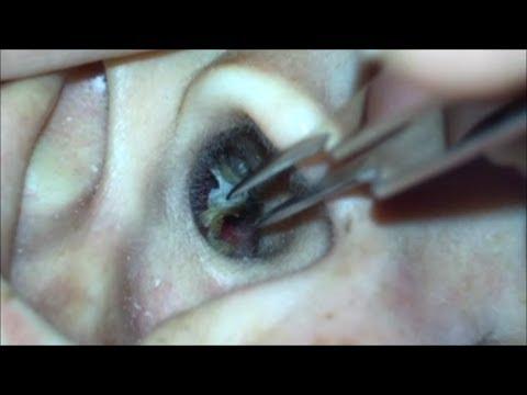 掃除 血 耳 【注意喚起】耳垢と耳掃除には注意しろ! 最悪の場合耳が聞こえなくなるぞ