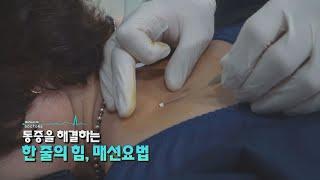 [닥터스] 통증을 해결하는 한줄의 힘! 매선요법!!! …