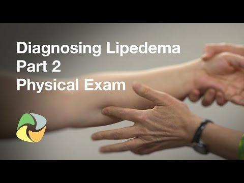 Diagnosing Lipedema Part 2 - Physical Exam
