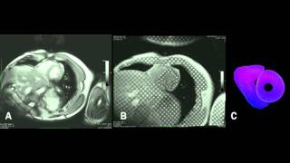 Auburn University MRI Research Center