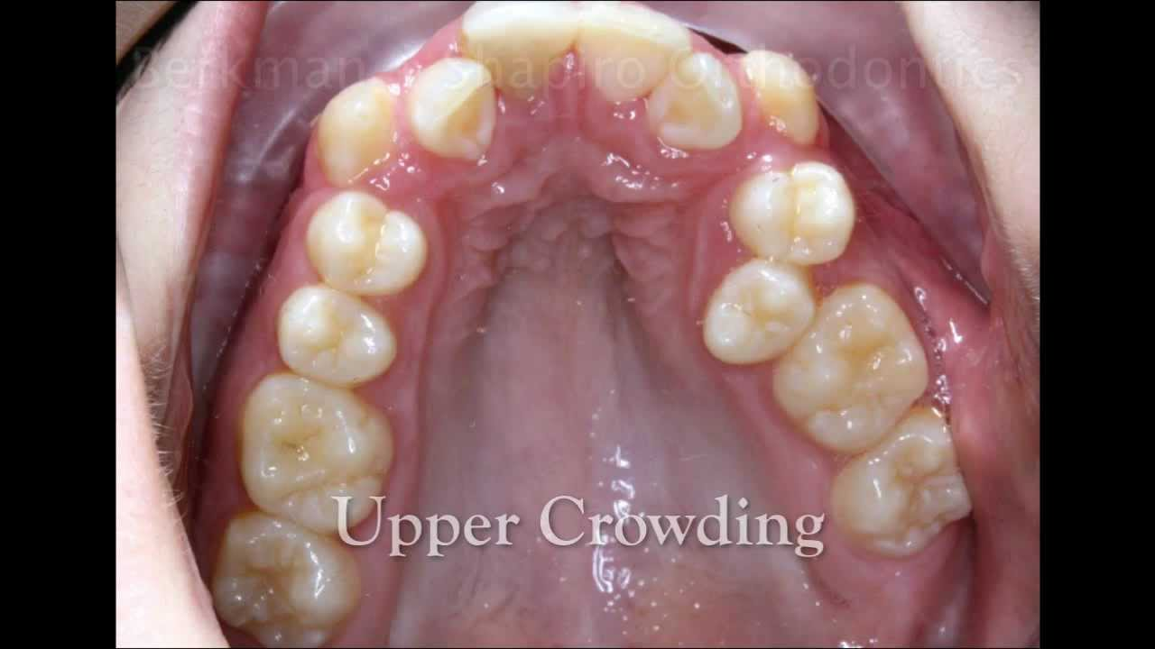 Teeth Crowding - Before and After - YouTube