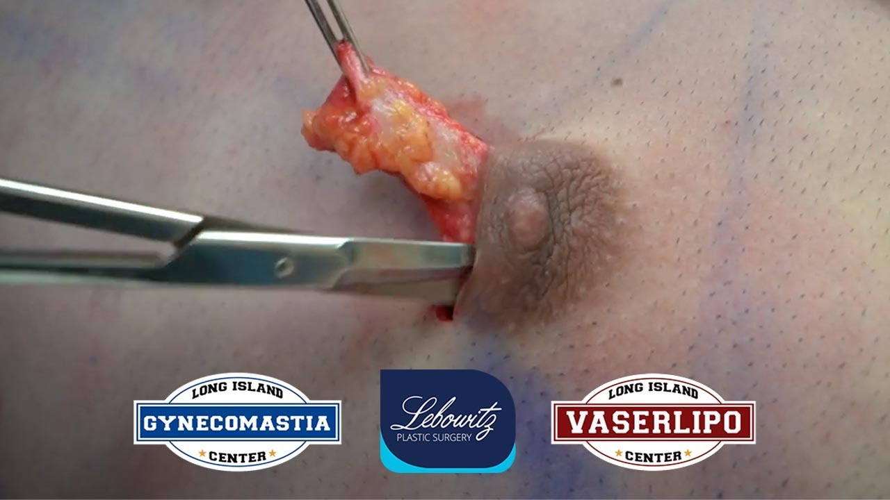 Gynecomastia Surgery on Male from MAINE (Gland Removal, Vaser Lipo & Renuvion)