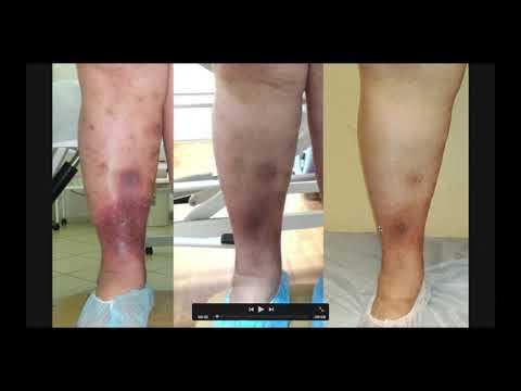 Лечение трофических нарушений и хронического отека при помощи массажа и бандажа
