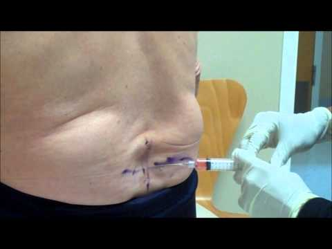 How to Fix Chronic Back Pain with Ozone Therapy Injection, 84 Year Old Male Arthritis