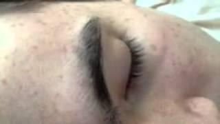 My eye during REM sleep