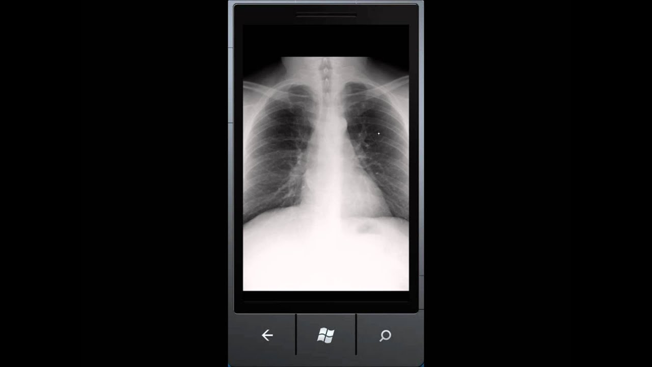 Easy DICOM Viewer for Windows Phone 7