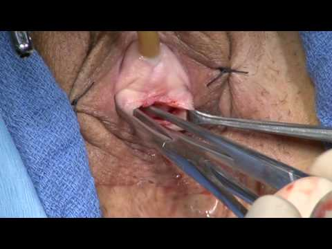 Female SUI treatment with Needleless Single Incision TOT
