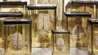 Бельгійські психіатри отримали 3 тисячі зразків мозку людини