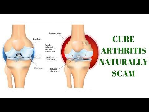 Cure Arthritis Naturally scam?