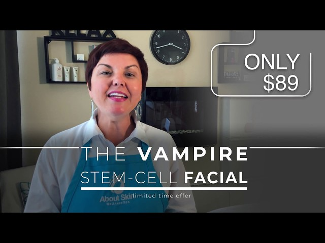 $89 Microneedling - The Vampire Stem-Cell Facial Treatment