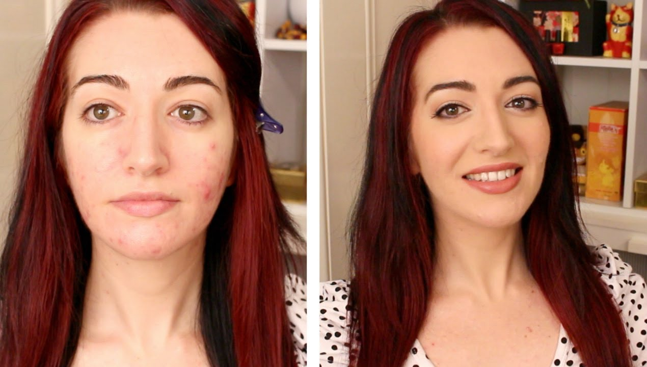 Natural Makeup For Acne Prone Skin