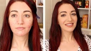 My BEST Everyday Makeup Routine For Oily & Acne Prone Skin Tutorial | How To Cover Acne Scarring Thumbnail