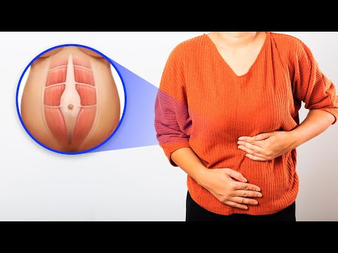 Why Is My Upper Stomach Bloated? 4 Causes of Abdominal Swelling