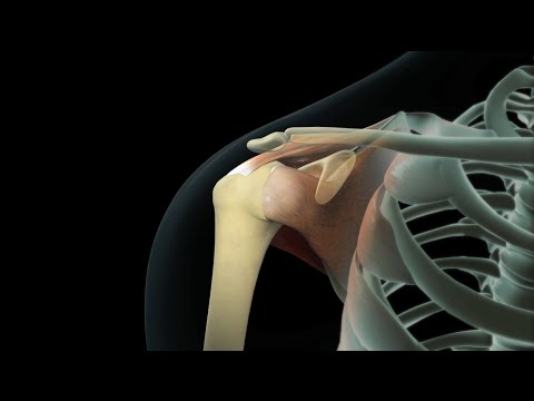 Rotator Cuff Shoulder Surgery