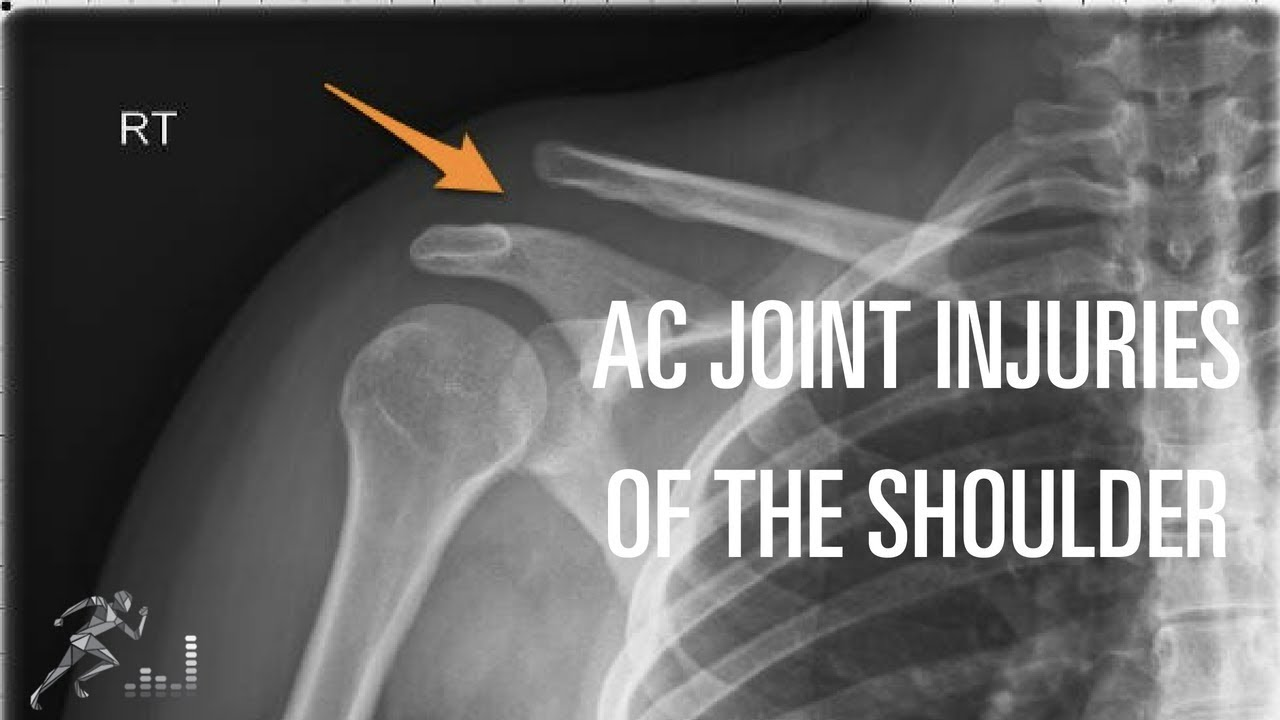 Acromioclavicular Ac Joint Injury Mechanism Of Injury Diagnosis