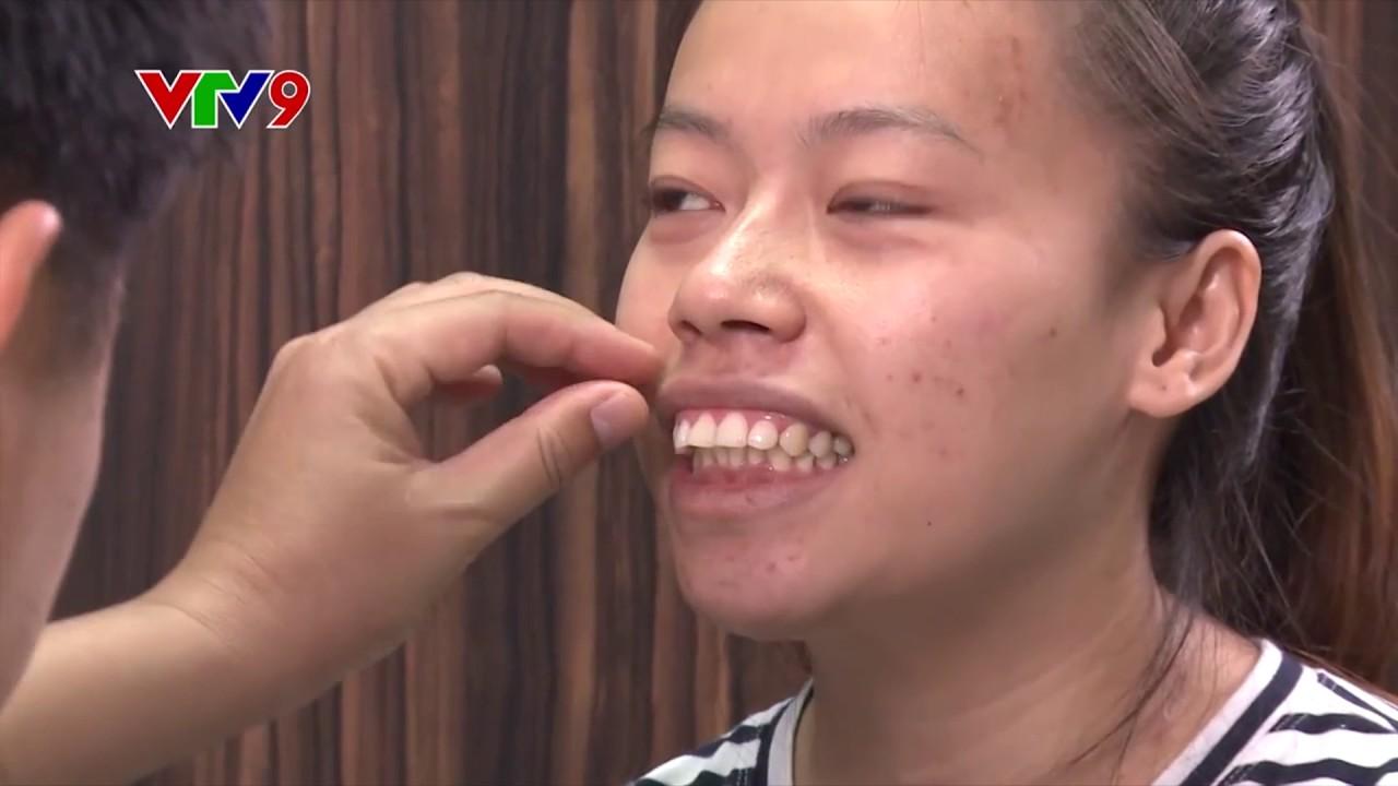 Phẫu thuật hàm hô miễn phí cho cô gái Tiền Giang đầy nghị lực