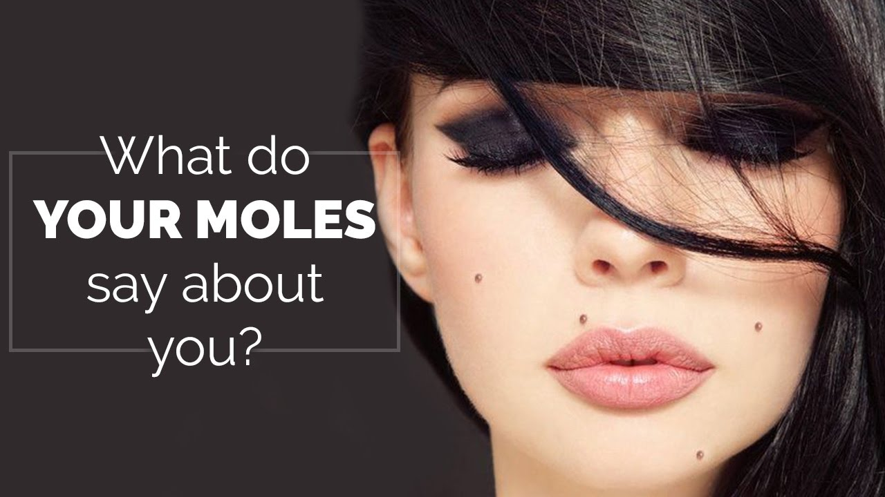 What Do Your Moles Say About You Moles On Body Youtube