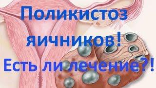 Поликистоз яичников. Есть ли лечение?!