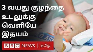 Chennai doctors saved 3year old Russian kid – குழந்தைக்கு செயற்கை இதயம்   Chennai