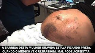 A barriga desta mulher grávida estava ficando preta. Quando o médico vê o ultrassom...