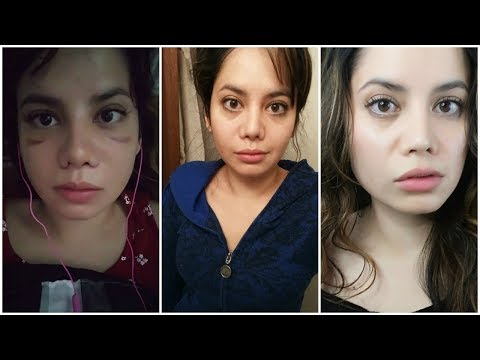 NOSE JOB SWELLING PROGRESSION | BEFORE AND AFTER - YouTube