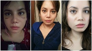 NOSE JOB SWELLING PROGRESSION | BEFORE AND AFTER