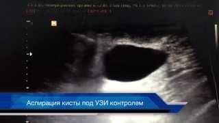 Лечение кист молочных желез (склеротерапия)