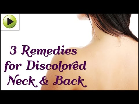 natural-home-remedies-for-a-discolored-neck-&-back