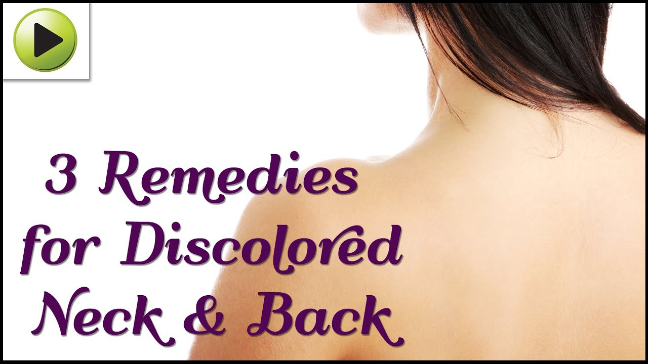 natural home remedies for