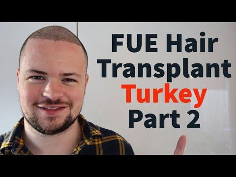 4345-graft-fue-hair-transplant-turkey--week-1-part-2