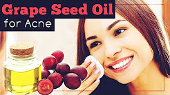 hqdefault - Can Grape Seed Oil Cause Acne