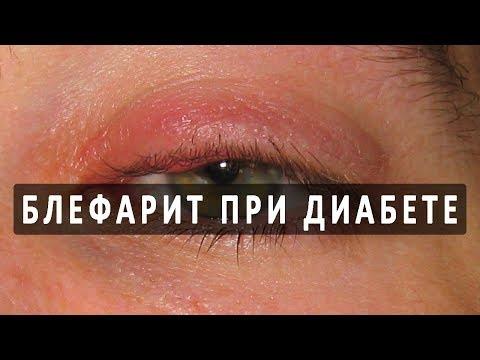Народная медицина - лечение воспаления глаз