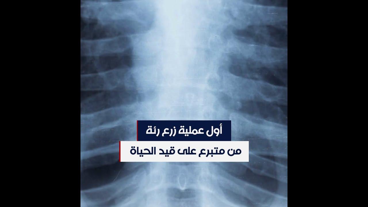 في عملية غير مسبوقة.. 30 طبيبا ينقذون امرأة تحدت كورونا  - نشر قبل 24 ساعة