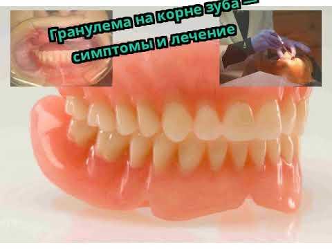 Гранулема на корне зуба — симптомы и лечение