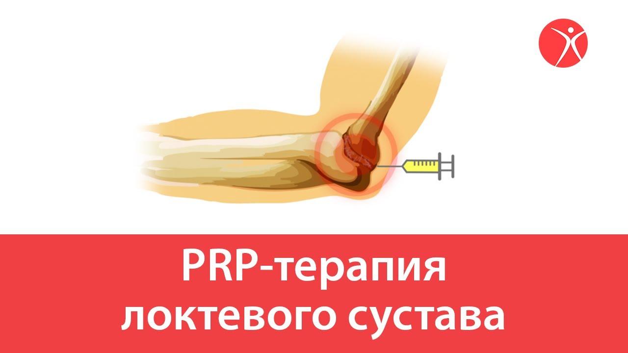 PRP-терапия локтевого сустава. Видео